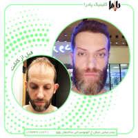 کلینیک تخصصی پوست و مو پادرا بندرعباس